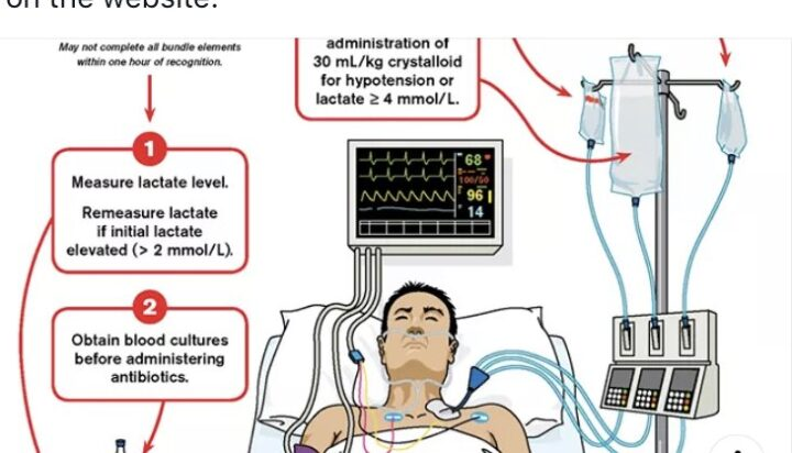 Post Cardiopulmonary Resuscitation Unilateral Flail Chest Unmasked by Dystonia