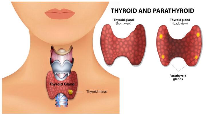Thyrotoxic Dysphagia in a Child
