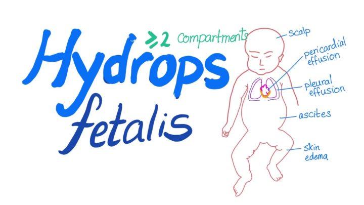 Newborn with Nonimmune Hydrops Secondary to Fetal COVID‐19 Myocarditis